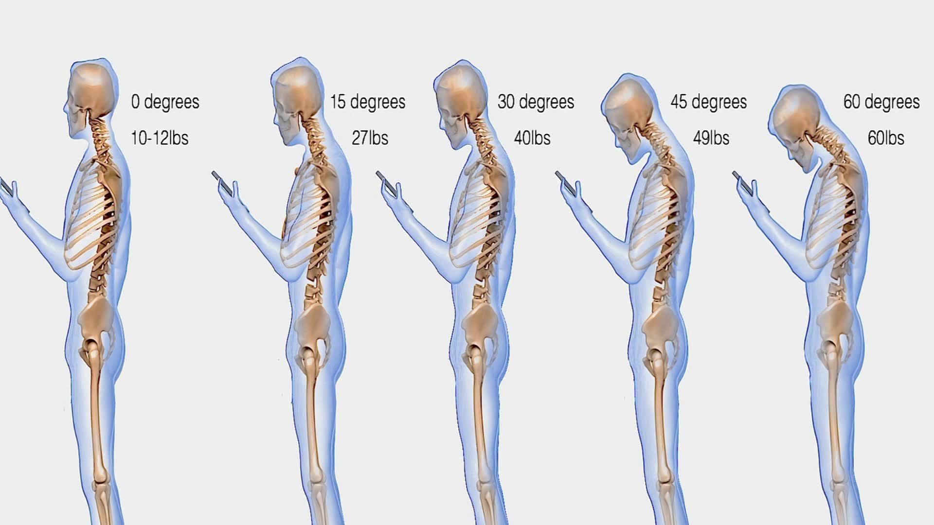 Image result for weight on head posture